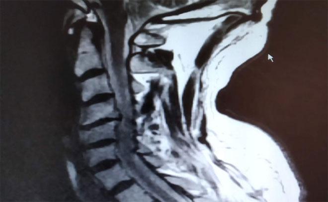 '¡Artrosis!: A la palestra' (I), por el Dr. Manuel Chaparro Recio, traumatólogo, en EL HERALDO DEL HENARES