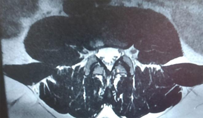 El Dr. Manuel Chaparro Recio en EsRadio Guadalajara: '¿Artrosis, qué es la artrosis?'