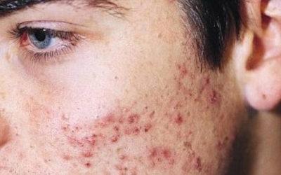 Desde el inicio de la pandemia hay muchos pacientes que nos consultan por aparición o empeoramiento del acné… ¿A qué se debe?