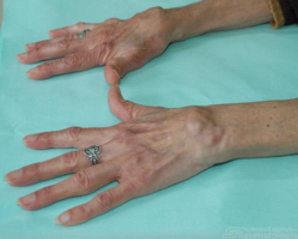 Los reumatólogos recomiendan un tratamiento multidisciplinar a los pacientes con artritis reumatoide crónica