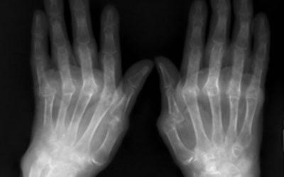 12 de octubre, 'Día Mundial de la artritis reumatoide'…, pero, ¿qué es exactamente la artritis reumatoide?, ¿se puede prevenir?, ¿tiene cura?…, por el Dr. Manuel Chaparro Recio