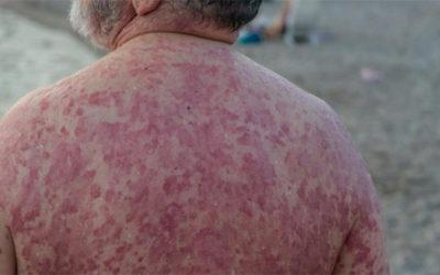 La psoriasis, esa enfermedad silenciosa que ya afecta a un millón de personas en España