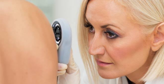 Tratar de manera temprana la Hidradenitis Supurativa puede frenar la progresión de la enfermedad y no llegar a estadios más graves