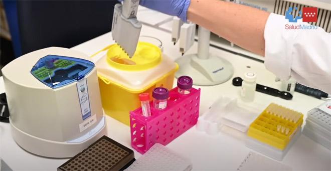 El hospital Gregorio Marañón describe el primer caso en España de una paciente que se infectó en abril y septiembre con dos cepas diferentes del SARS-CoV 2