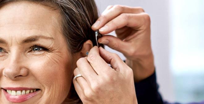 Los implantes cocleares mejoran el estado cognitivo en mayores de 55 años