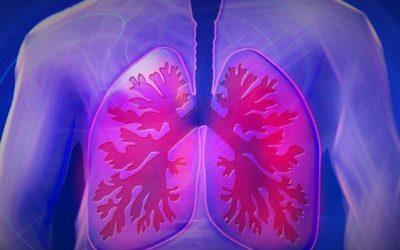 La detección precoz de la enfermedad pulmonar intersticial difusa podría reducir el deterioro pulmonar