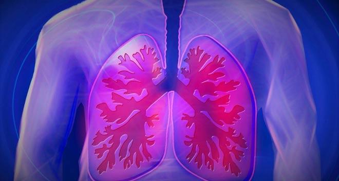 Un ensayo revela que combinar quimioterapia e inmunoterapia aumenta la supervivencia en pacientes con cáncer de pulmón
