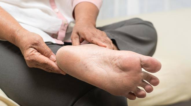 Los expertos destacan la importancia del cuidado de los pies, sobre todo en pacientes con enfermedades reumáticas